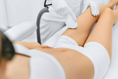 Elos tehnologija za trajno uklanjanje dlaka sa tela