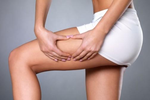 Zašto je VelaShape III efektniji tretman od anticelulit masaže?