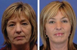lifting lica pre i posle