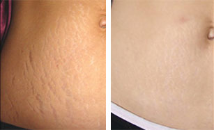 stretch marks before and after laser treatment
